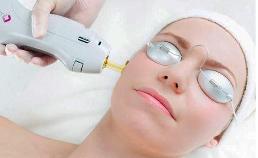 دستگاه لیزر مو الکساندرایت کندلا