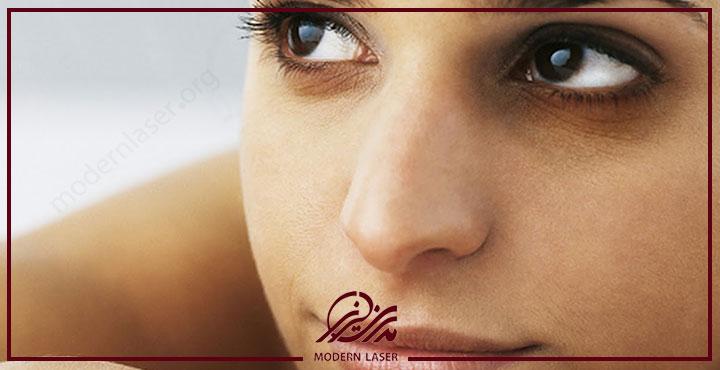 درمان مشکلات پوستی چشم